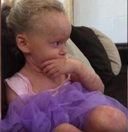 Această fetiță trece printr-un chin zi de zi ! AFLĂ care este povestea ei !
