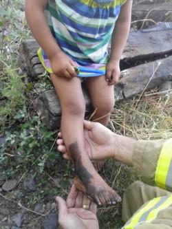 Și-a prins piciorușul între liniile de cale ferată ! VEZI poze
