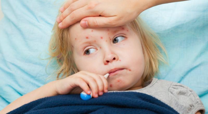 Spitalul Clinic Județean de Urgență Arad a suplimentat numărul paturilor pentru copiii diagnosticați cu rujeolă