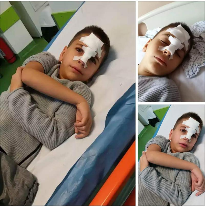 Un băiețel din clasa 0 a căzut pe scări,în cap, într-una din pauze, la o școală din Arad