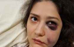 Tânără din Oradea, BĂTUTĂ pentru că a refuzat avansurile unor bărbați, într-un club. Agresorii sunt cercetaţi în libertate
