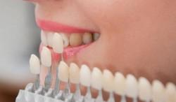 Încearcă şi tu uimitorul sistem CEREC CAD/CAM pentru faţete dentare!